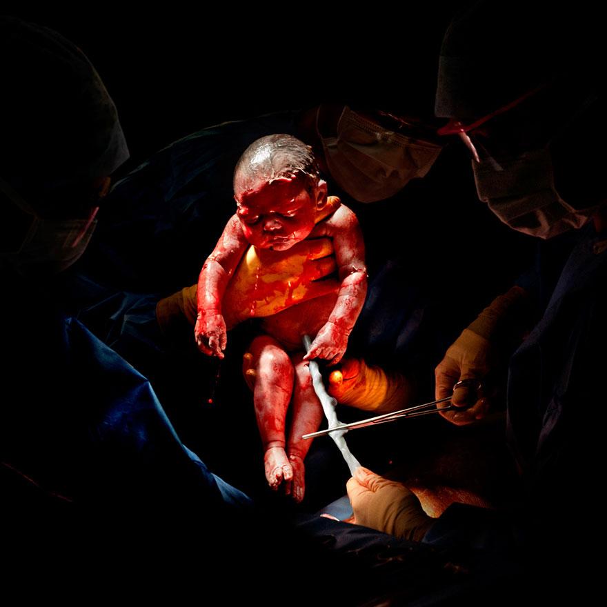 newborn-infant-photos-c-section-cesar-christian-berthelot-1