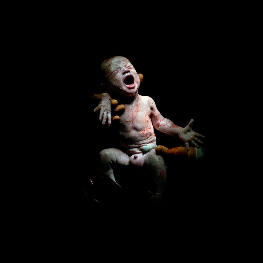 newborn-infant-photos-c-section-cesar-christian-berthelot-3