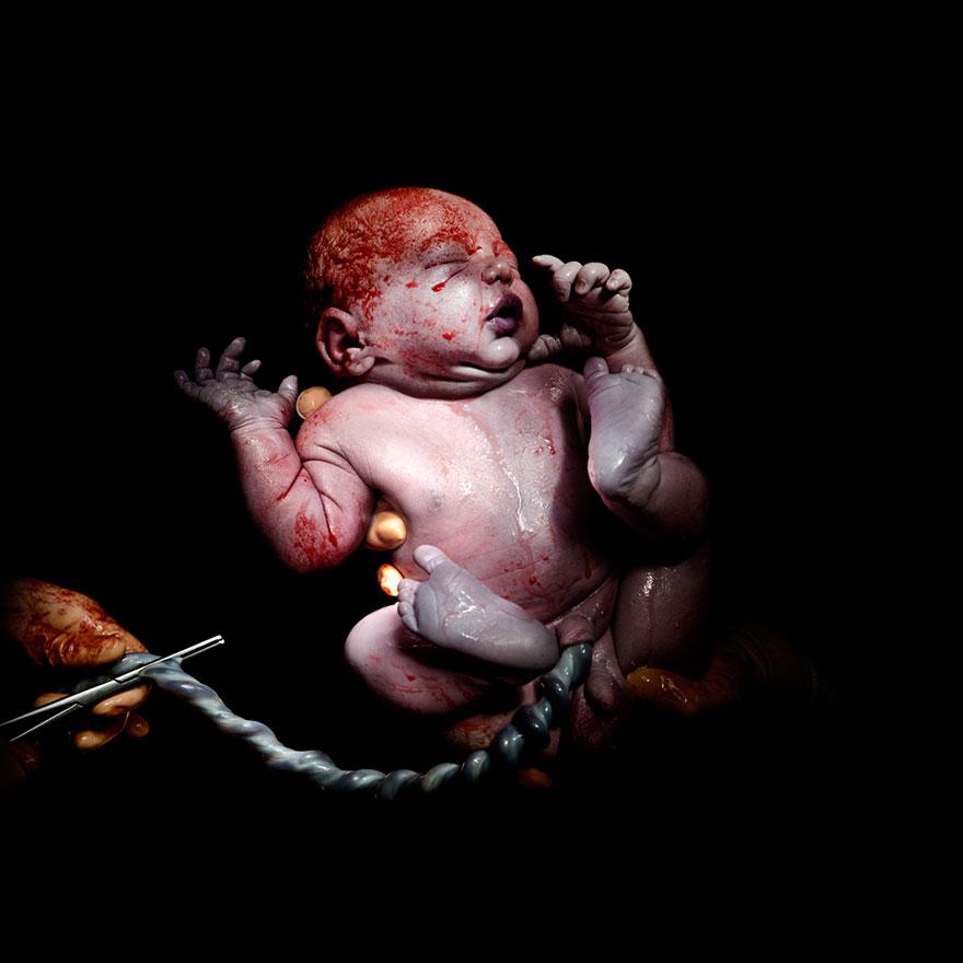 newborn-infant-photos-c-section-cesar-christian-berthelot-6