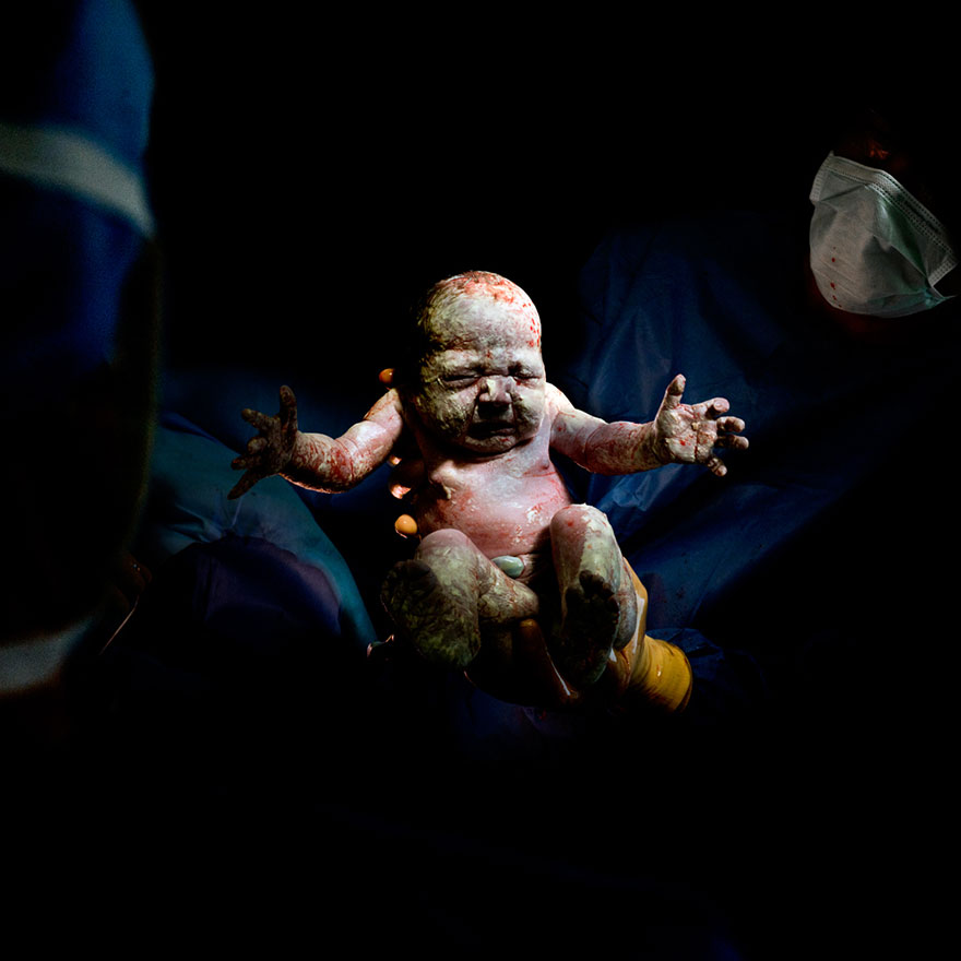 newborn-infant-photos-c-section-cesar-christian-berthelot-8