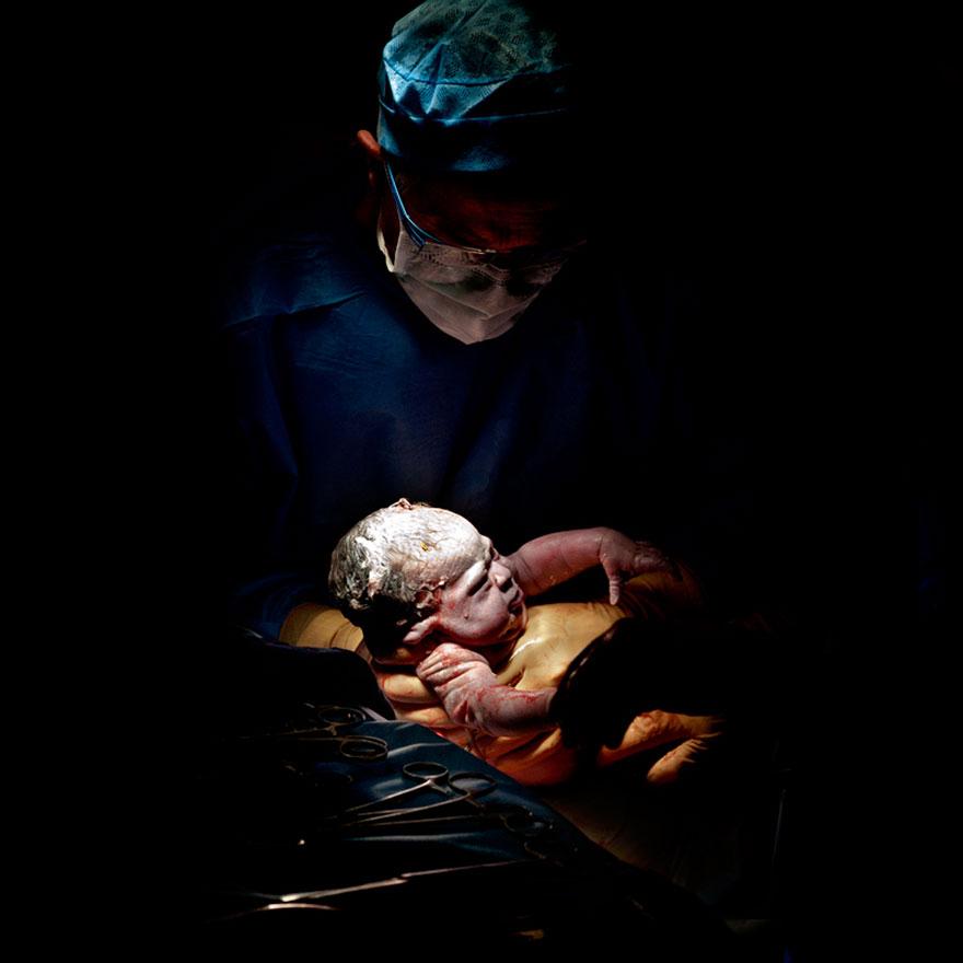 newborn-infant-photos-c-section-cesar-christian-berthelot-9