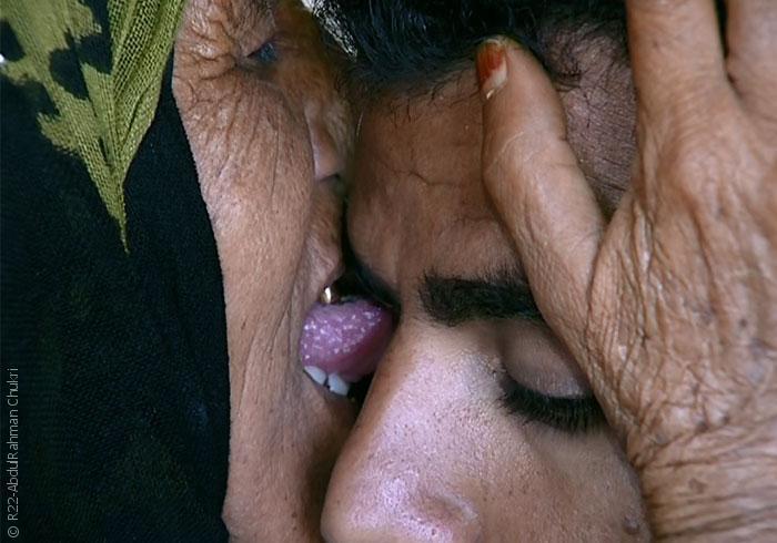 الطب الشعبي في اليمن - صورة 2