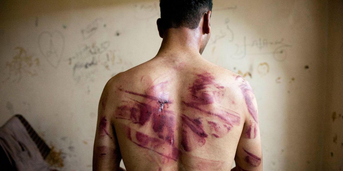 التعذيب، وسيلة الأنظمة العربية المفضلة لقمع معارضيها