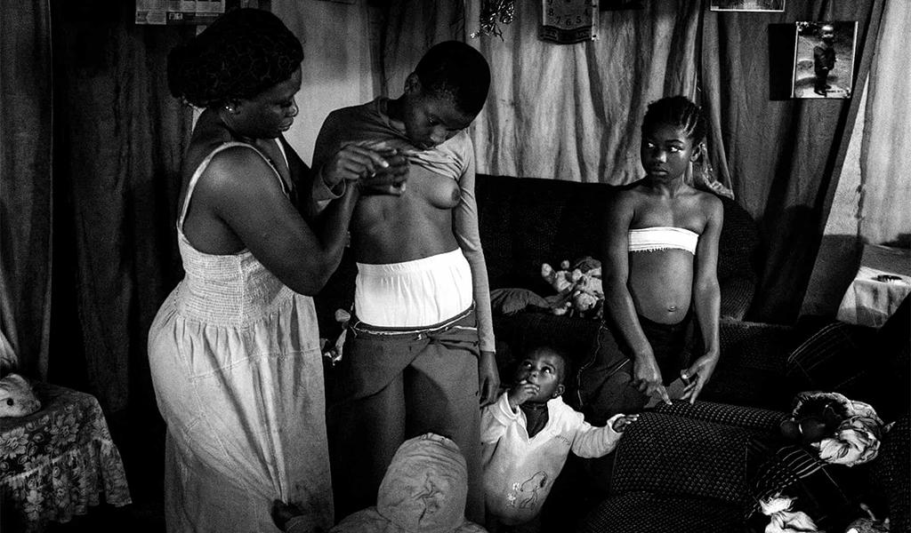 كَيُّ الأثداء..عادةٌ أفريقية تُمارس في بريطانيا وسط لامبالاة الجميع